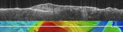 The upper panel shows a radargram from the Mars Advanced Radar for Subsurface and Ionospheric Sounding (MARSIS) instrument on the Mars Express orbiter. It profiles the ice-rich layered deposits at the south pole. The lower image shows the radar ground track on a topographic map of the area. The images are 1,250 kilometers (775 miles) wide.  The MARSIS echo splits into two traces on the left side of the image. The upper trace is the echo from the surface of the deposits, while the lower trace marks the bound